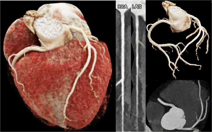 A comprehensive review of imaging findings in COVID-19 - status in ...