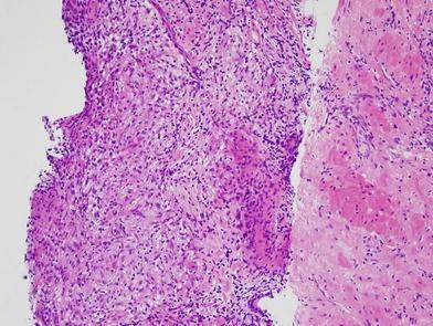 Granulomatous prosztatagyulladás kezelése