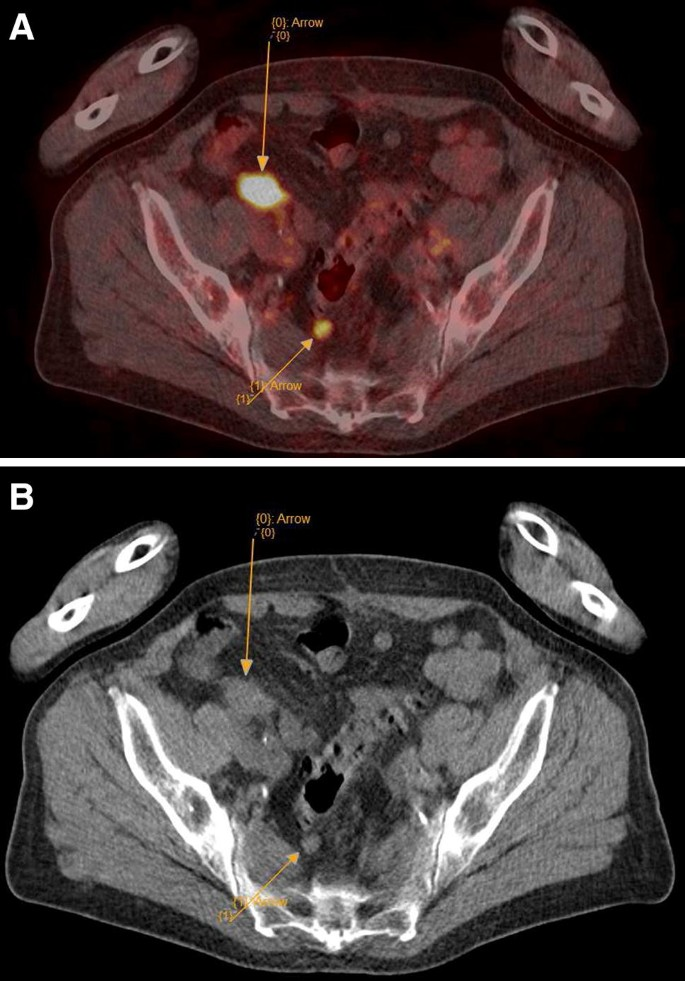 peritoneal cancer pet scan