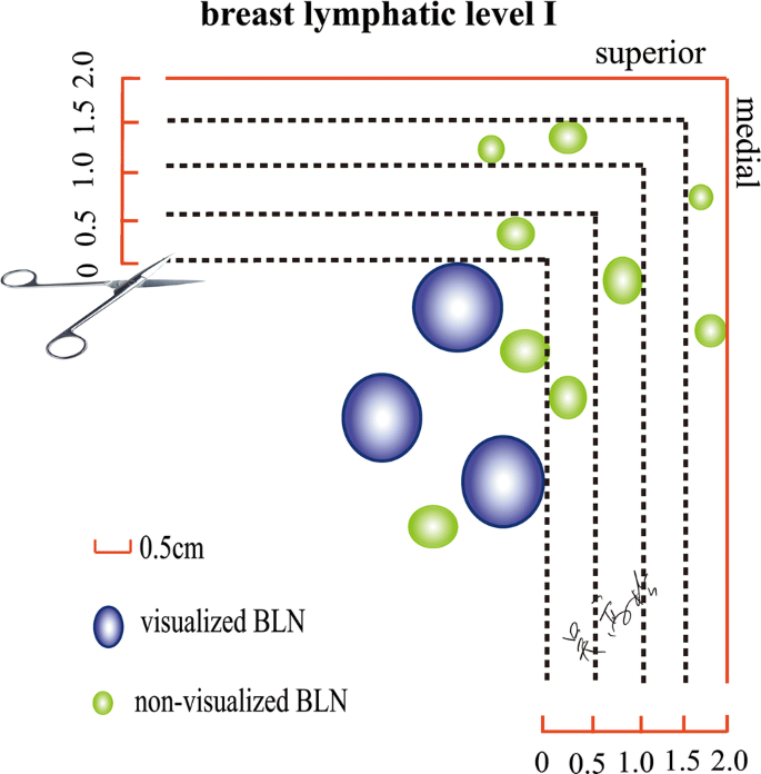 Surgical Management of the Axilla in Breast Cancer Patients with ...