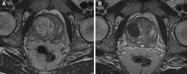 prostate adenoma mri prostatitis a hideg miatt
