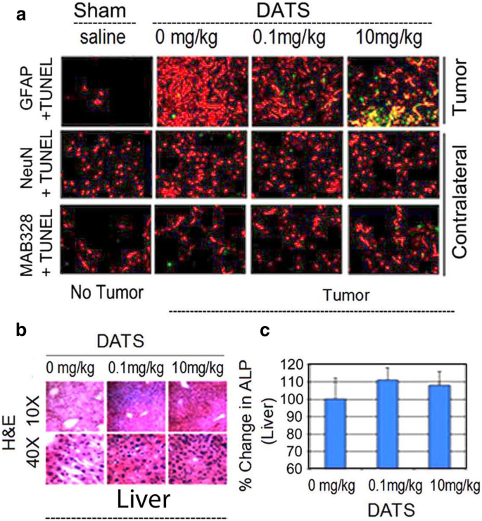 Single agent efficacy of the HDAC inhibitor DATS in preclinical ...