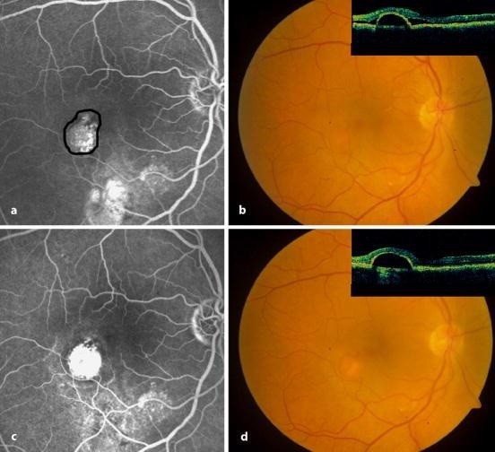 Selektive Retina-Therapie bei Retinopathia centralis serosa mit ...
