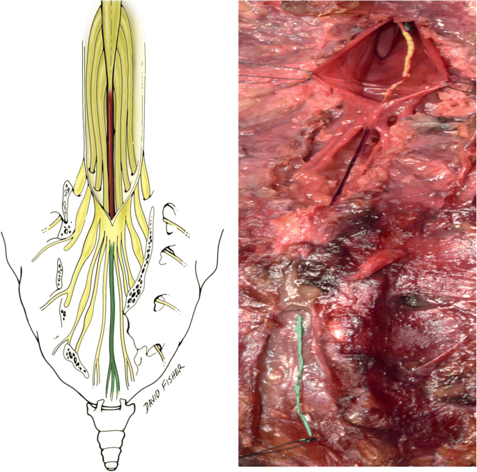 Mechanical Relationship Of Filum Terminale Externum And Filum Terminale Internum Is It Possible To Detether The Spinal Cord Extradurally Springerlink In length, prolonged downward from the apex of the conus medullaris. filum terminale internum