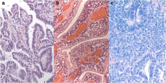 choroid plexus papilloma neonatal)