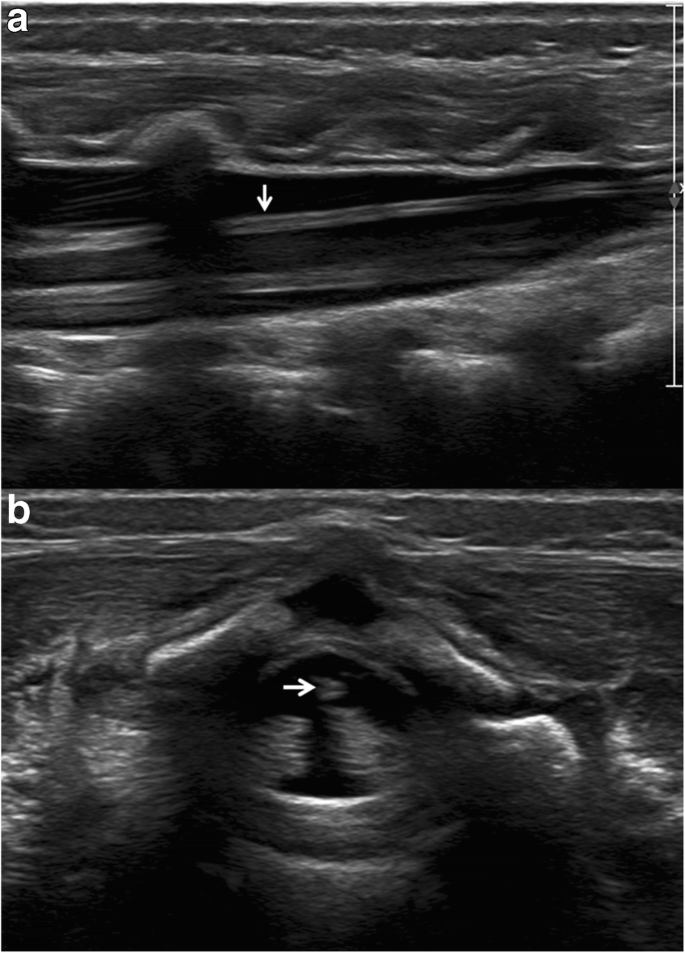 Filum Terminale Lipoma Revealed By Screening Spinal Ultrasonography In Infants With Simple Sacral Dimple Springerlink Cyst of the filum terminale: filum terminale lipoma revealed by