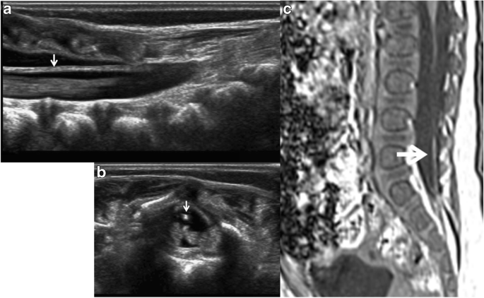 Filum Terminale Lipoma Revealed By Screening Spinal Ultrasonography In Infants With Simple Sacral Dimple Springerlink When a person moves the spine to stretch and bend, as happens regularly during daily activities, the abnormal filum terminale cannot. filum terminale lipoma revealed by
