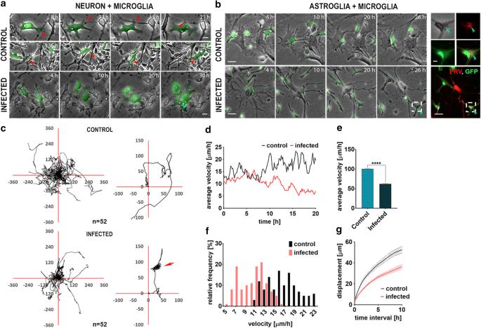 Microglia control the spread of neurotropic virus infection via ...