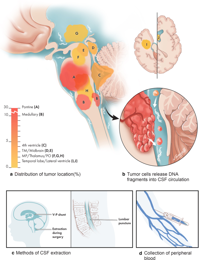 Molecular profiling of tumors of the brainstem by sequencing of ...