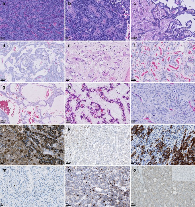 Molecular characterization of CNS paragangliomas identifies cauda ...