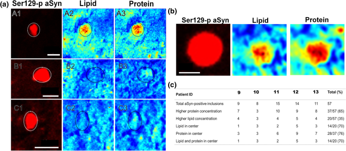 The subcellular arrangement of alpha-synuclein proteoforms in the ...