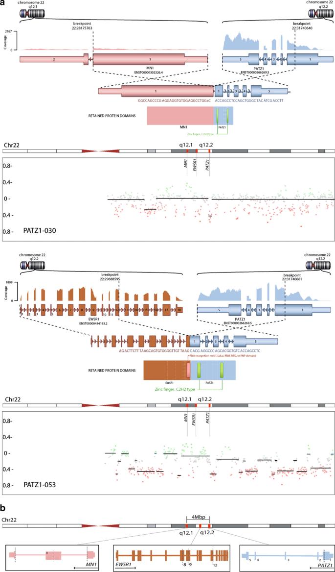 PATZ1 fusions define a novel molecularly distinct neuroepithelial ...