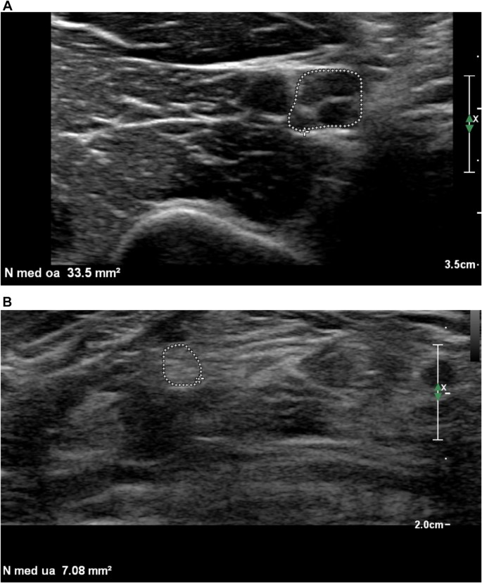 Nerve echogenicity and intranerve CSA variability in high ...