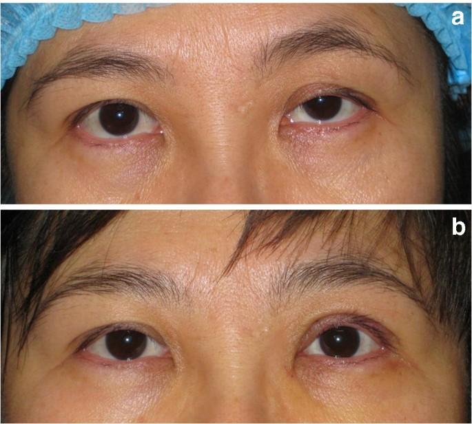 steroid eye drops droopy eyelid