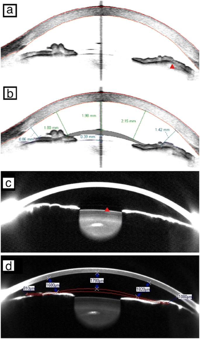 Differences between Scheimpflug and optical coherence tomography ...