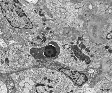 Morphological and cytochemical determination of cell death by ...