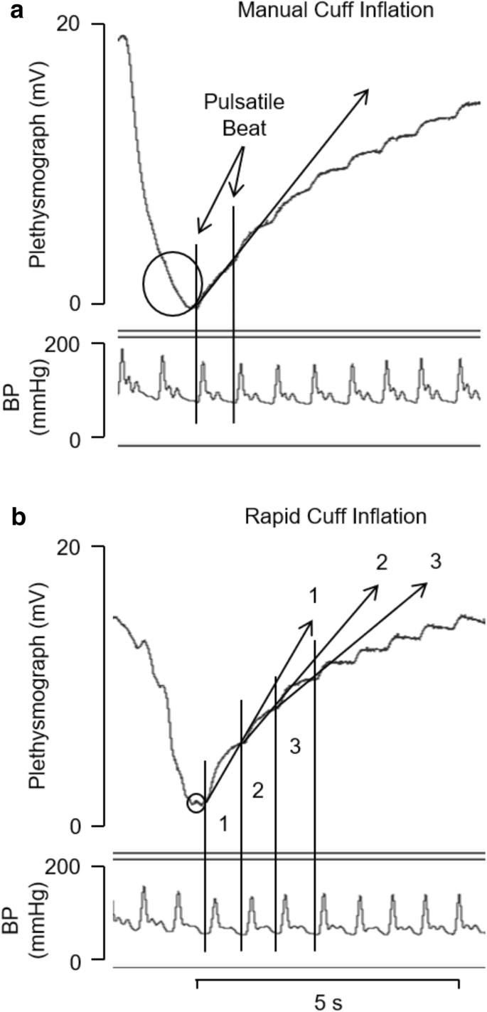 Cuff inflation time significantly affects blood flow recorded with ...