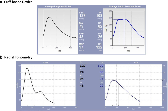 Comparison between cuff-based and radial tonometry exercise ...