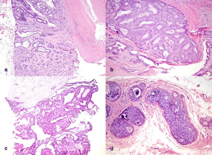 papilloma intraduttale b3)