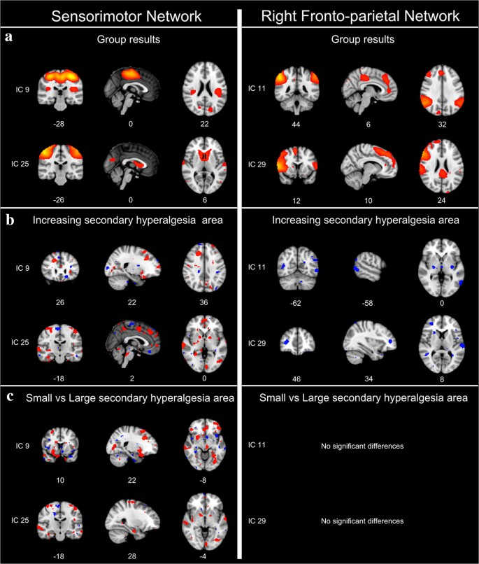 Brain resting-state connectivity in the development of secondary ...