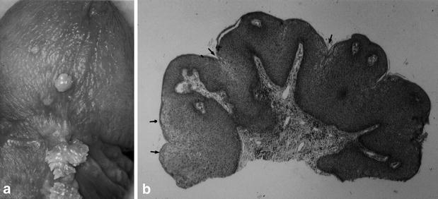 condylomata acuminata and human genital cancer)