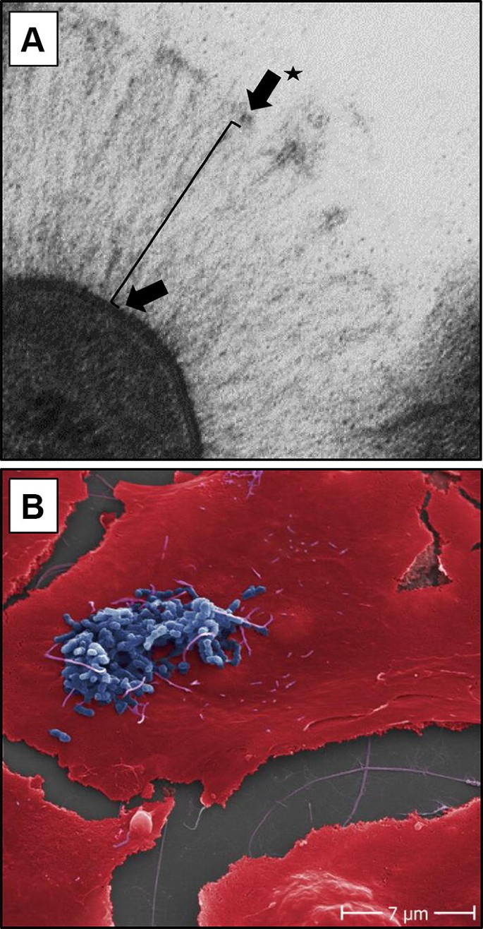 Immunogenicity of trimeric autotransporter adhesins and their ...