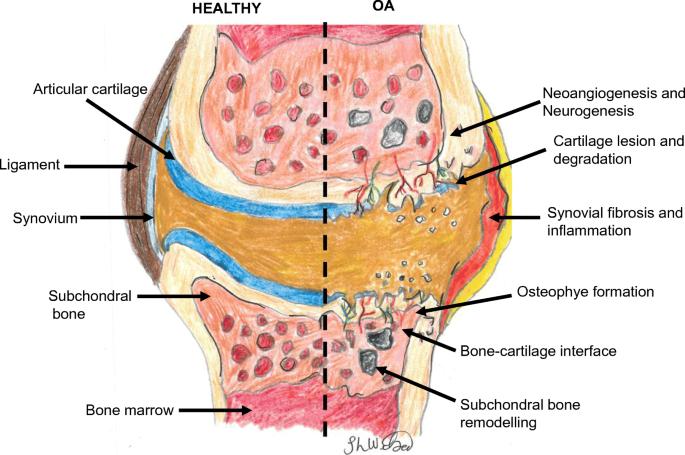plaquenil kopen