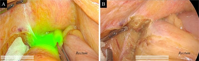 Timing Of Indocyanine Green Injection Prior To Laparoscopic Colorectal Surgery For Tumor Localization A Prospective Case Series Springerlink