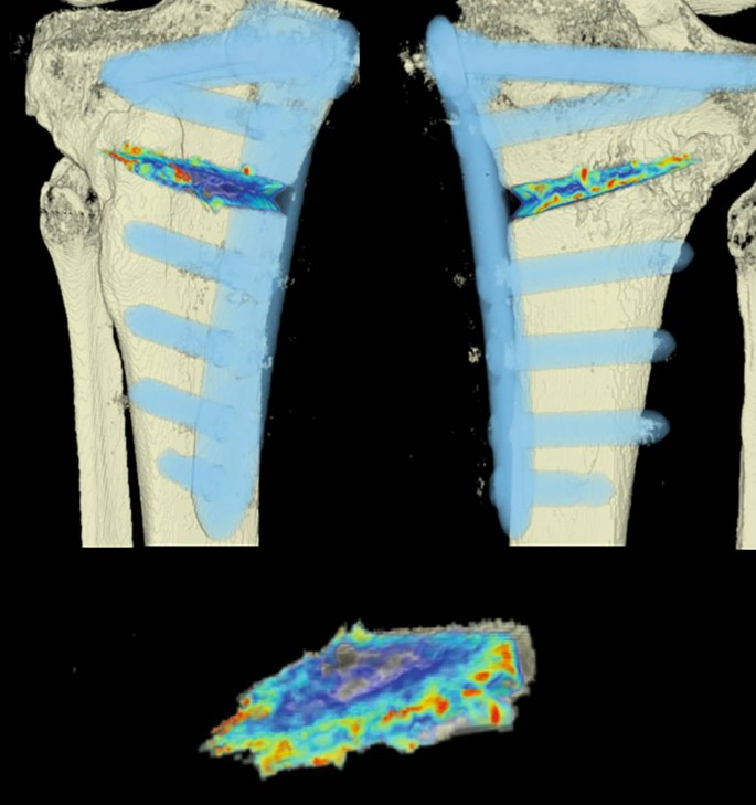 Analysis and quantification of bone healing after open wedge high ...