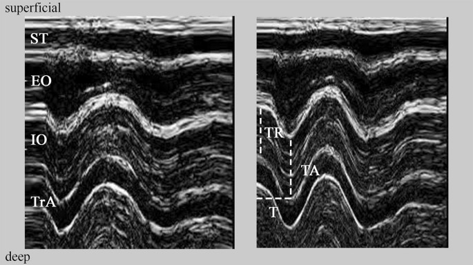 Deformations of abdominal muscles under experimentally induced low back pain  | SpringerLink