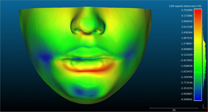 Accuracy of three-dimensional virtual simulation of the soft ...