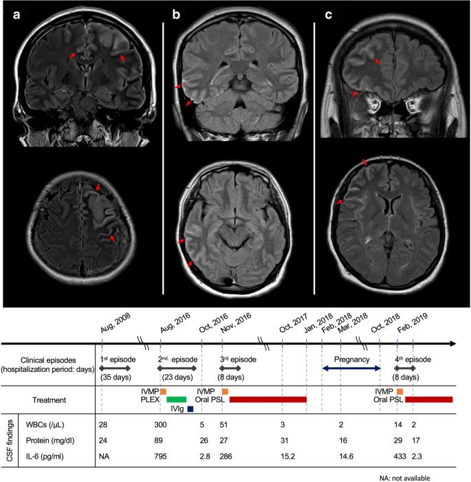 Cerebrospinal Fluid Mog Antibodies In Anti Nmda Receptor