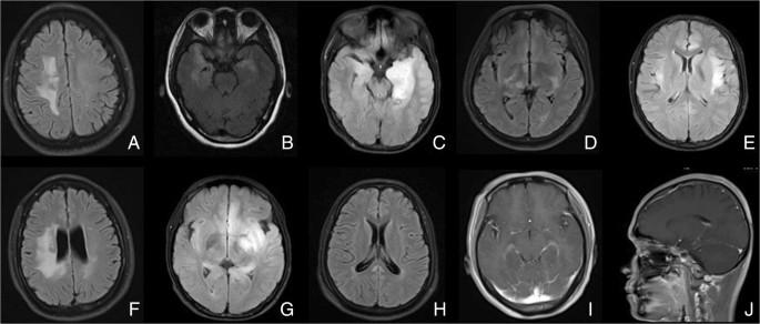 Anti N Methyl D Aspartate Receptor Encephalitis A Prospective