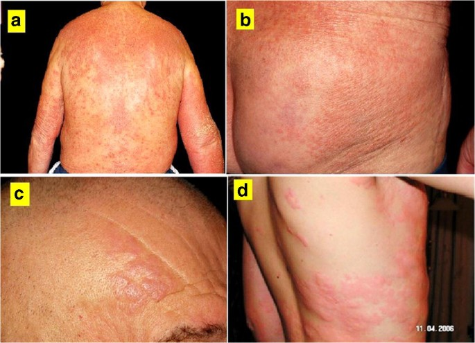 giardia skin lesions)