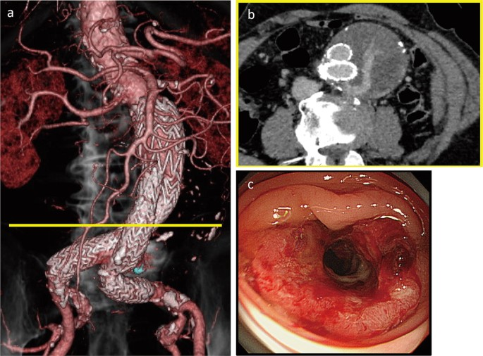 3d Printed Model Based Simulation Of Laparoscopic Surgery For Descending Colon Cancer With A Concomitant Abdominal Aortic Aneurysm Springerlink