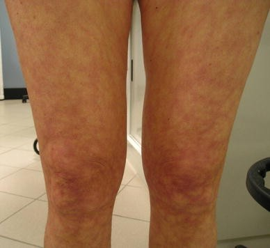 Sneddon's syndrome presenting with severe disabling
