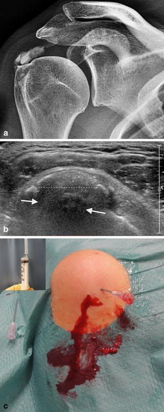 Calcific tendinitis of the rotator cuff: state of the art in diagnosis and  treatment | SpringerLink