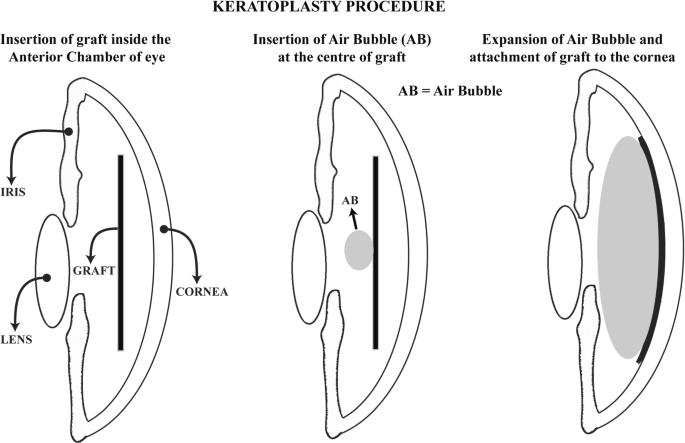 keratoplastie conductivă oftalmologică)
