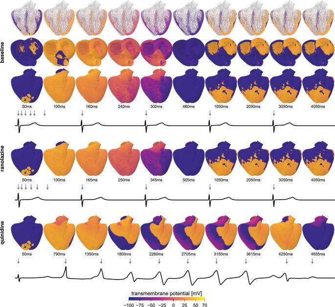 Precision medicine in human heart modeling | SpringerLink