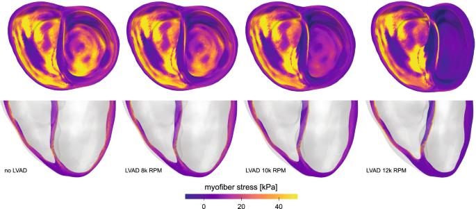 Precision medicine in human heart modeling   SpringerLink