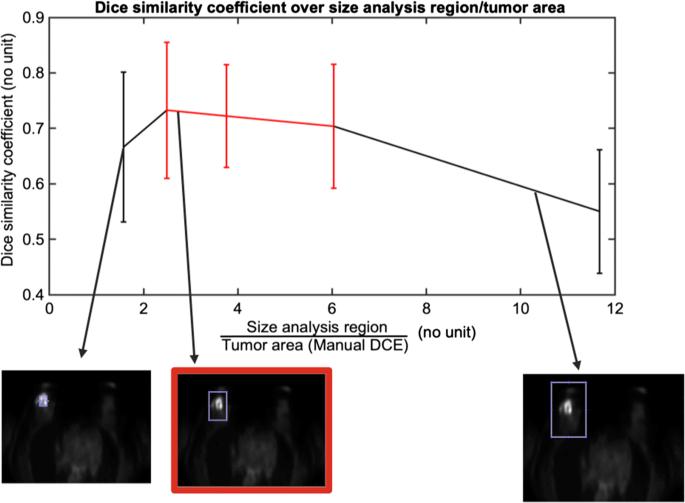 Semi-automatic segmentation from intrinsically-registered 18F-FDG ...