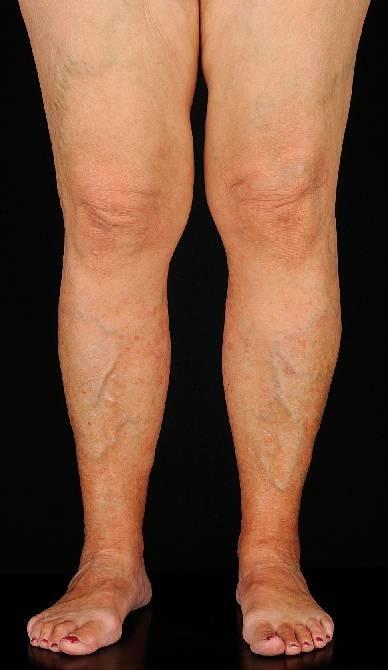 De ce să apară și cum să eliminați pete venoase întunecate pe picioare cu vene varicoase