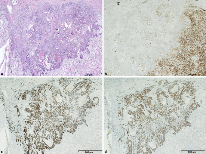 A Rare Case Of Cancer To Cancer Metastasis Breast Cancer To Renal Cell Cancer Springerlink