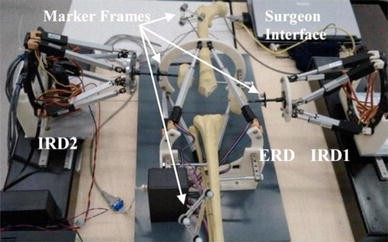 Robot-Assisted Fracture Surgery: Surgical Requirements and System ...