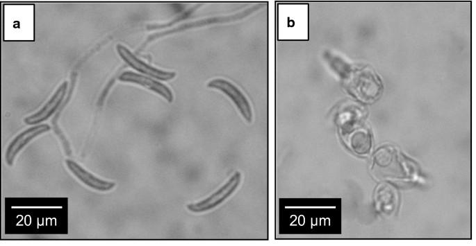 Bolgár bacillus parazita vagy saprotroph)