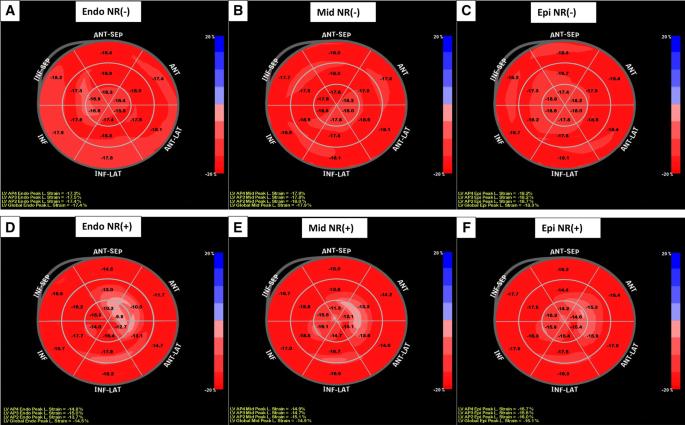 Multilayer longitudinal strain can help predict the development of ...