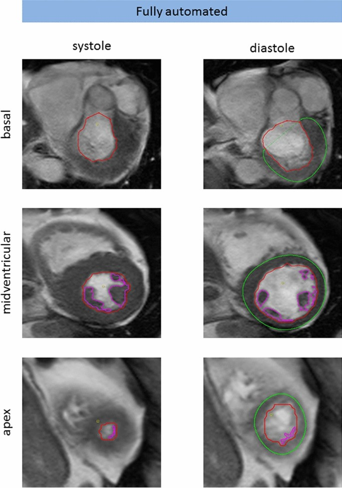 Fully automated quantification of left ventricular volumes and ...