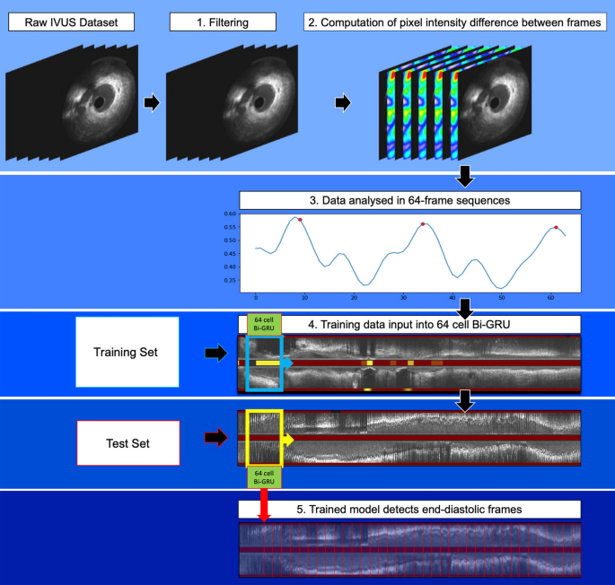 A deep learning methodology for the automated detection of end ...