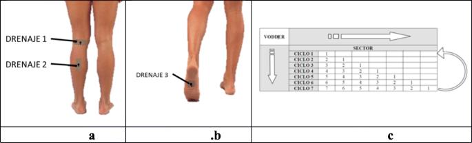 Design of a Functional Splint for Rehabilitation of Achilles ...