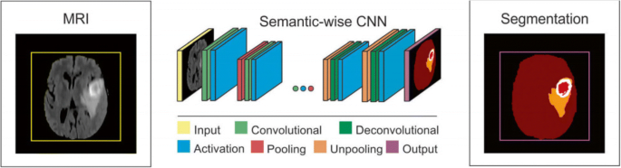 An Improved Full Convolutional Network Combined with Conditional ...